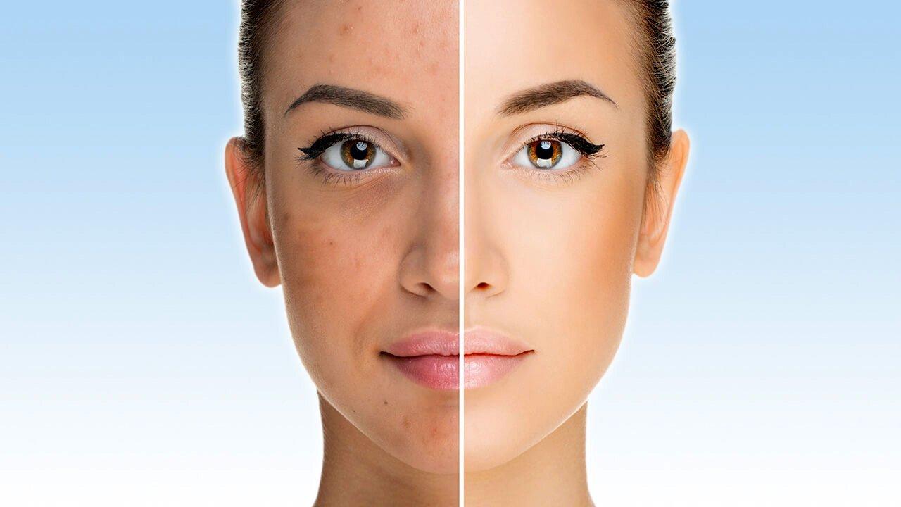 Пилингът е продукт, който съдържа химикали, обикновено киселини, които се използват за елиминиране на повърхностния слой на кожата. Най-използваните са гликолова или салицилова киселина.